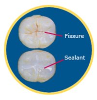 fissue and dental sealant