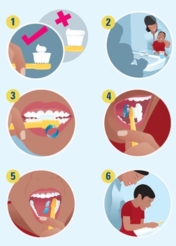 How to brush kids teeth
